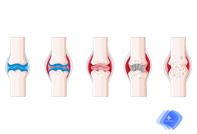 موثرترین درمان آرتروز