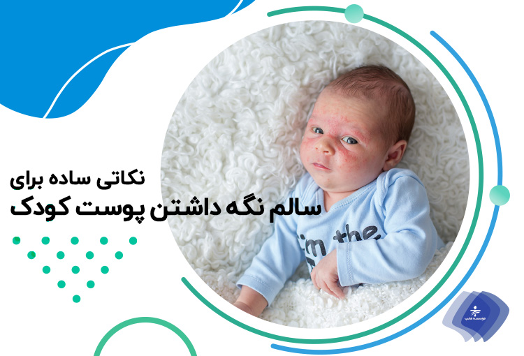 جلوگیری از مشکلات پوستی در نوزادان