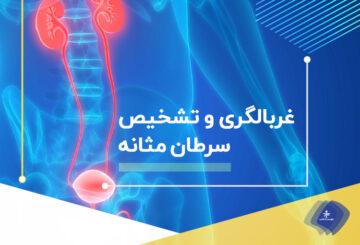 علائم و روش تشخیص سرطان مثانه